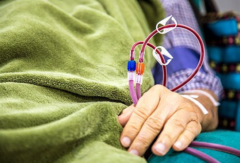 Hemodialysis and peritoneal dialysis are different ways to filter the blood.