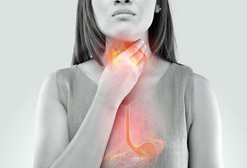 Photo illustration of a woman with esophageal pain.