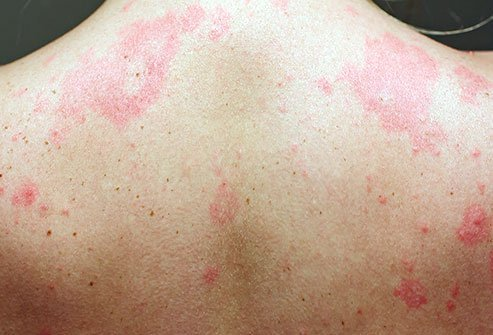 Hives can be caused because of allergies to one or more things.