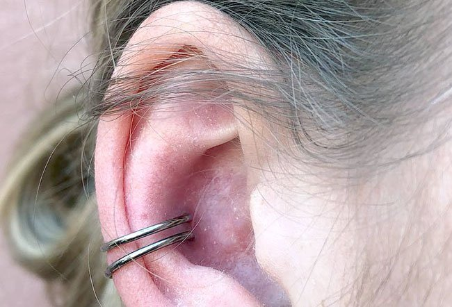 "Conch (medically known as ""concha"") piercings are painful."