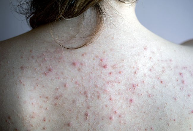 Painful, deep cystic and nodular acne pimples tend to be difficult to treat on your own. You will need a doctor to treat this condition.