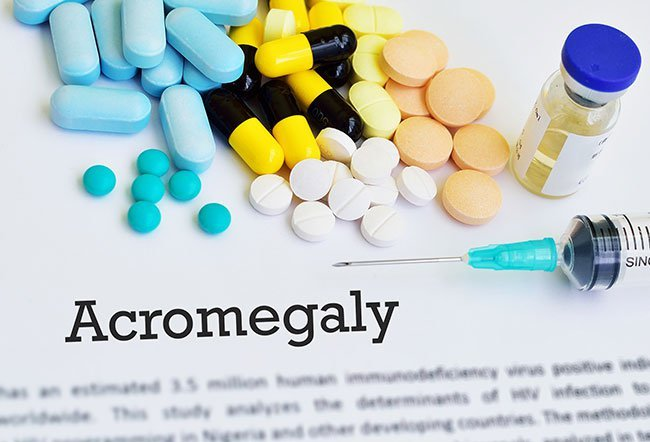 Acromegaly is a rare endocrinological disorder; only three to four cases are diagnosed per million people each year.