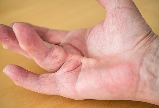 The cause of Dupuytren's disease, a condition that causes thickened tissue in the hand that can cause the fingers to pull inward, is unknown. Risk factors include being male, age over 40 years, northern European ancestry, family history, heavy alcohol consumption, smoking, previous hand injury, medical conditions (diabetes, liver disease, etc.), and medications.