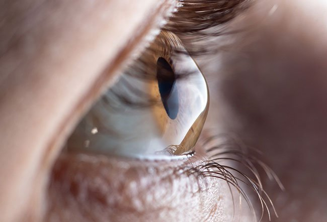 The exact causes of keratoconus are not known.