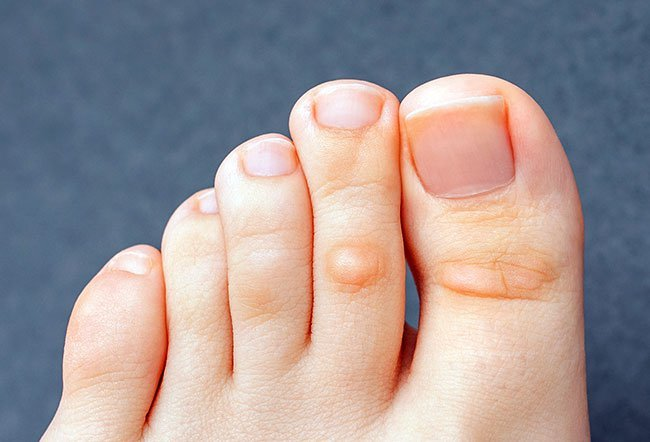 You can get rid of a corn on your foot with medications, alternative remedies and treatments, and surgery.