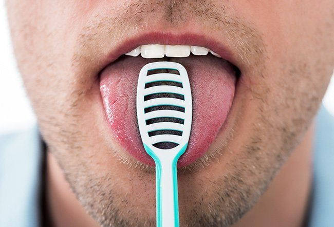 Black hairy tongue is a harmless condition that causes an abnormal coating on the top of the tongue. The best way to get rid of black hairy tongue is to practice good oral hygiene. You may also use a topical antifungal if needed, stop medications that could be causing it, and more.
