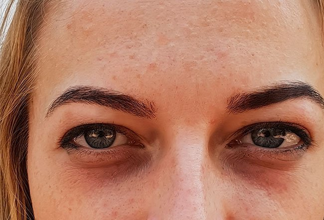 Under eye puffiness is a common condition you can try to treat at home.