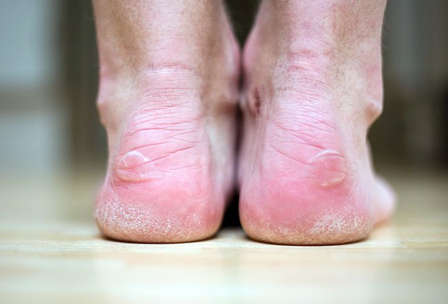 Blisters are fluid-filled skin lesions. They are caused by burns, contact dermatitis, friction and certain medical conditions.