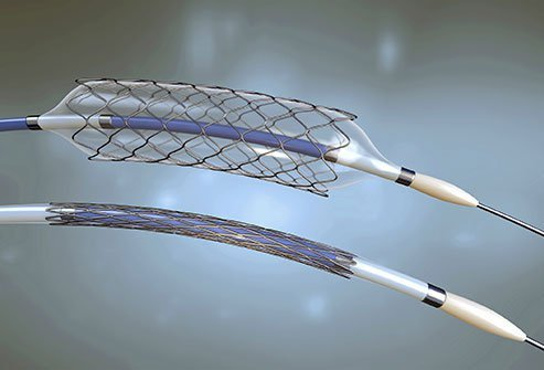 A biliary stent is a tube surgically placed to keep the bile duct open.