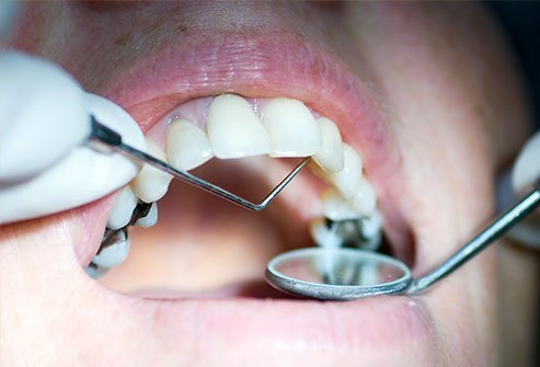 Dental fillings last for various lengths of time depending on the material.