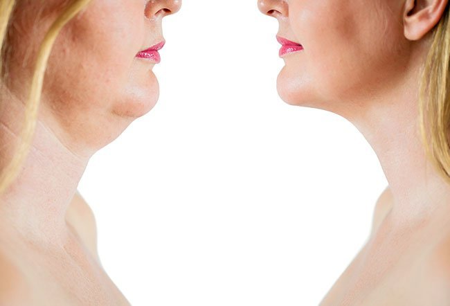 The results of Kybella may last for years because the fat cells are completely destroyed.