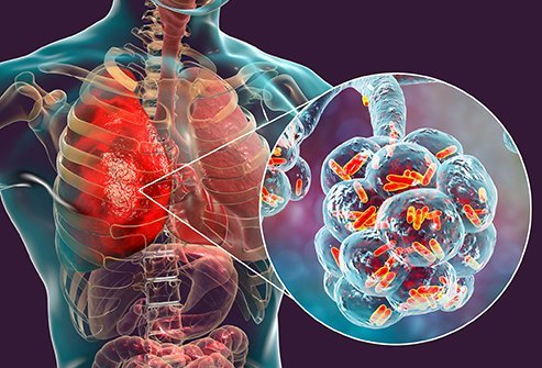 Pneumonia is frequently caused by bacteria and viruses which can be contagious, depending on the pathogen. Pneumonia is a potentially deadly lung condition that can affect one or both lungs and cause cough, fever, and trouble breathing.