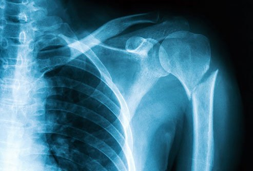 Humerus fractures cause severe pain and swelling.