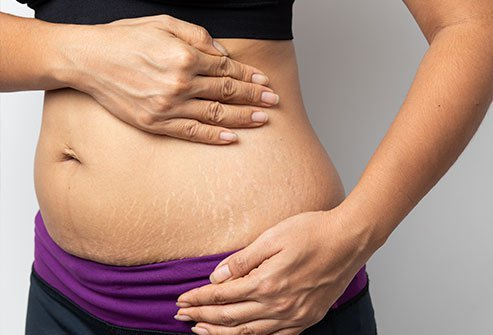 Pregnancy stretch marks are reddish or violet streaks that eventually turn grey, white or silvery.