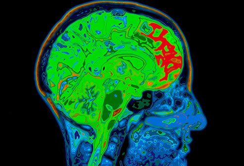Hydrocephalus is due to the accumulation of cerebrospinal fluid (CSF) in the cavities deep within the brain.