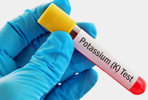 Hypokalemia is defined as decreased potassium levels in the body.