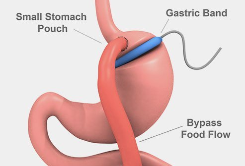 Gastric banding is a surgery to reduce the size of the stomach and help patients lose weight.