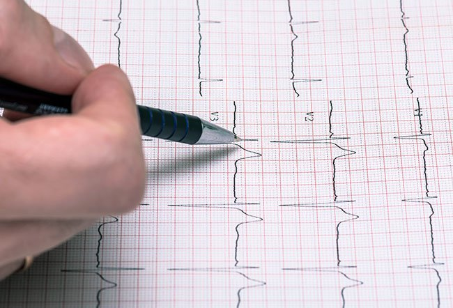Untreated supraventricular tachycardia may cause life-threatening complications.