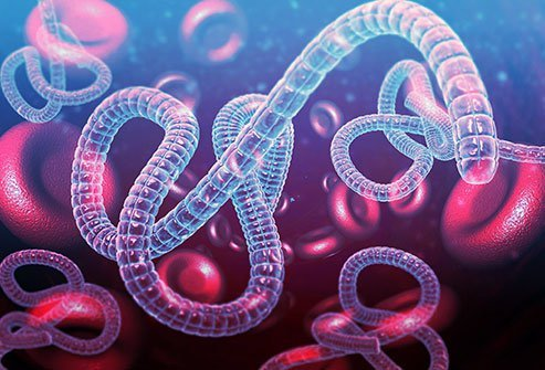 Ebola, a deadly viral infection, is not contagious through the air, but is transmissible through contact with an infected person, animal, bodily fluids, or surfaces. Sexual transmission and transmission from mother to infant are also possible.