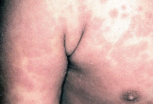 A non-blistering rash is one of the clinical features of Kawasaki disease.