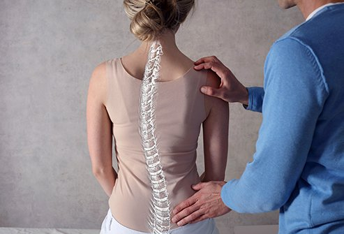 Kyphosis is the abnormal forward curve up the upper spine, leading to a hunchback appearance.