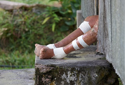The progression of leprosy includes skin ulcers and lesions accompanied by loss of sensation and eventual loss of digits and other extremities.
