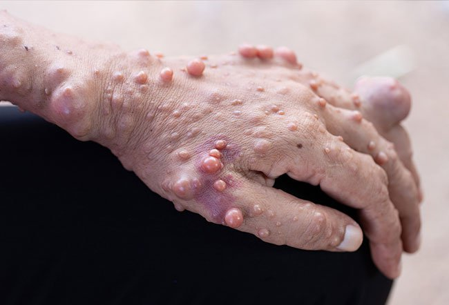 Neurofibromatosis (NF) is a genetic neurological disorder that causes tumors to form on the nerve tissue.