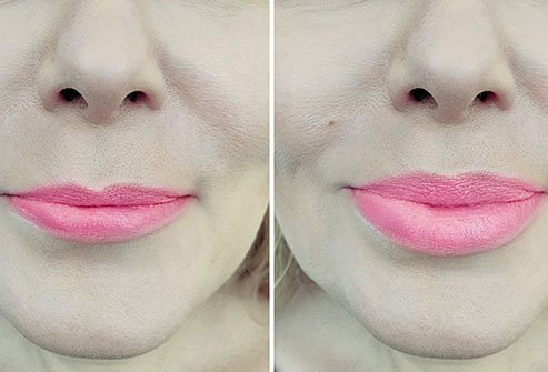 What Does Lip Augmentation Mean Success Rate