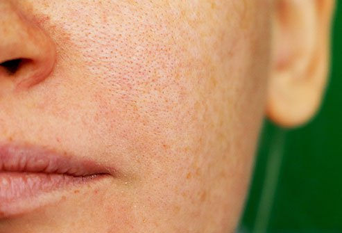 Melasma is patchy brown skin discoloration that occurs on the face.