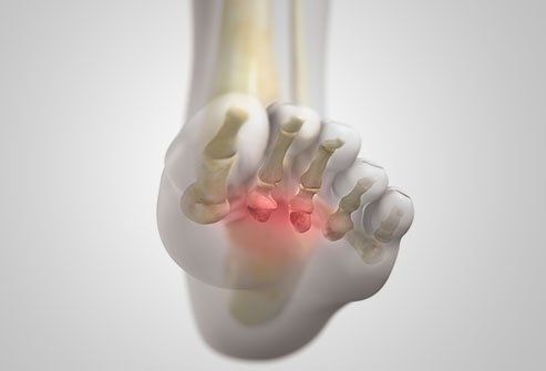 Morton's neuroma produces symptoms of metatarsalgia or ball of foot pain.