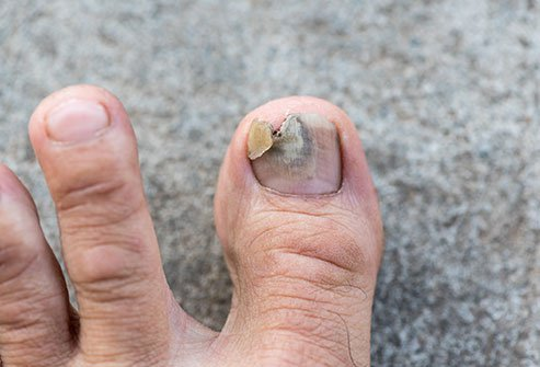 An injury to the nail bed may require a trip to the ER depending on the extent of the injury.