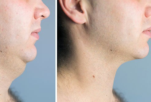 The double chin is the layer of skin between the neck and face.