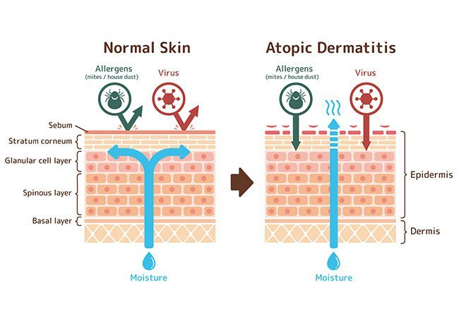 Psoriasis and atopic dermatitis are common, long-term skin diseases.