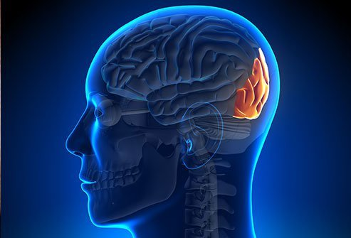 Occipital nerve stimulation relieves pain in the back of the head (occipital region) by producing a tingling sensation in the occipital area.