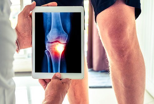 There are four stages of knee osteoarthritis.