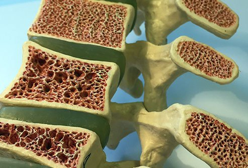 Osteoclasts travel over the surface of the bone matrix and secrete acids and enzymes to disintegrate it, forming a little bit on the surface of the bone.