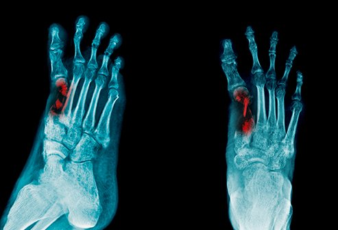 People with osteomyelitis may feel pain over the affected bone.
