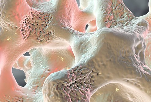 Osteoporosis is a bone disorder. Bone loss happens when the body absorbs more bone than it can create