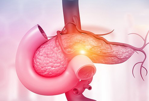 Pancreatic cancer does not show early signs and symptoms, and only starts to show warning signs in once it has grown.
