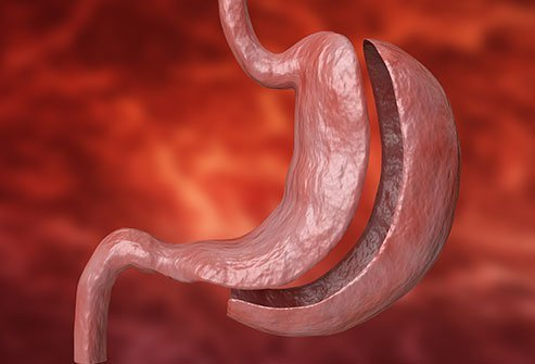 A partial gastrectomy is usually performed with the patient under general anesthesia by a gastrointestinal surgeon. The surgery is performed in an operation theater, and may take up to five hours and require up to two weeks of recovery in the hospital.