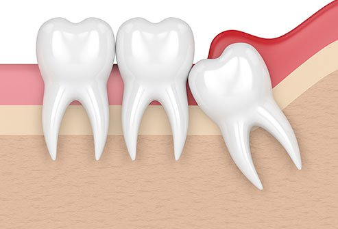 Pericoronitis: Pain, Wisdom Tooth Infection, Treatment