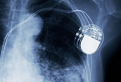 Most children can live a normal life after pacemaker surgery