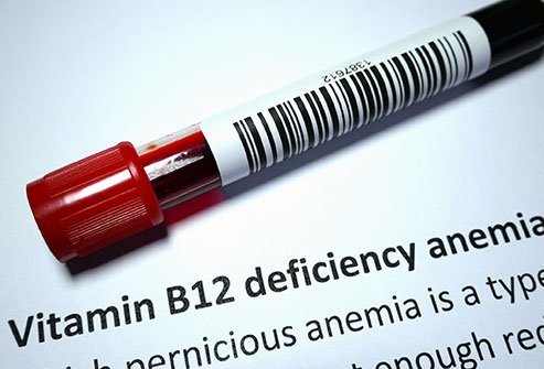 Pernicious anemia is a deficiency in red blood cells caused by lack of vitamin B12 in the blood.