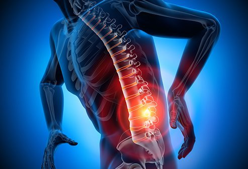 Depending on the cause, pinched nerves (radiculopathy) often do not require treatment, and in some cases, the pinched nerves go away as the back and nerves heal. This is especially the case when the pinched nerve is caused by soft tissue issues like muscle spasms.