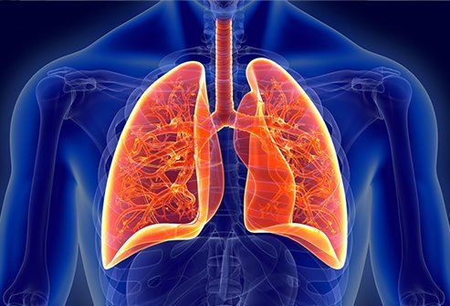Pleurisy is swelling and irritation of the tissues between the lungs and chest wall/rib cage