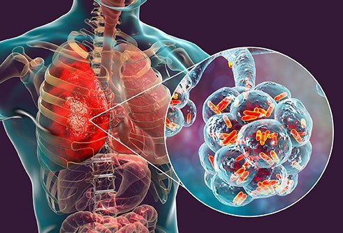 Pneumonia is an infection that affects one or both lungs causing them to fill with pus or liquid. The three main causes of pneumonia are bacteria, viruses, or fungi. Treatment is depends on the cause.