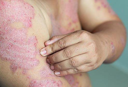 Psoriasis may cause plaques of red skin, flakes of dry skin, and skin scales.