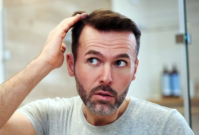 A receding hairline is a type of hair loss affecting both men and women.