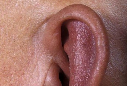Redness and swelling of the ears is a common sign of relapsing polychondritis.