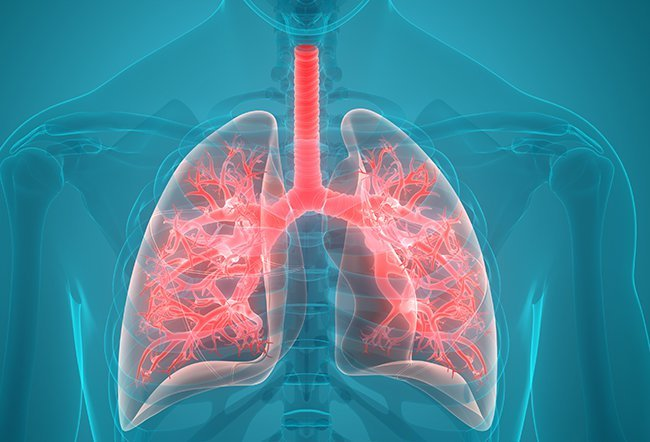 What is more aggressive, NSCLC SCLC?